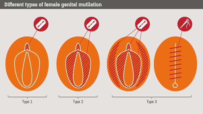 (8) Mutilations féminines génitales
